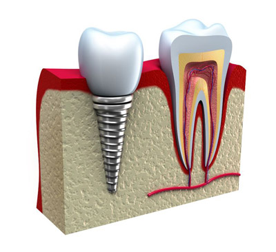 Implant Dentistry - Advance Dental Care Chatswood